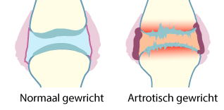 Artrose-plaatje