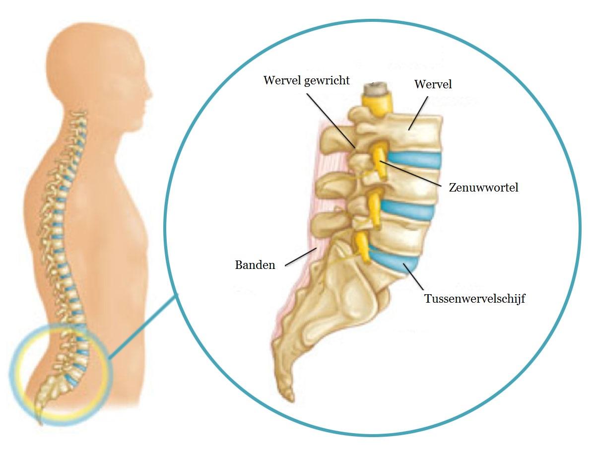 lage rugpijn behandeling