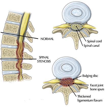 kanaal stenose